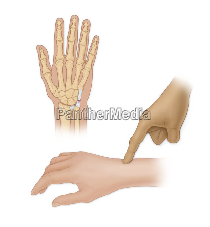 hand bones with injury and finger