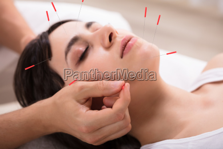 beautiful woman getting acupuncture treatment