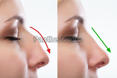 womans nose before and after plastic
