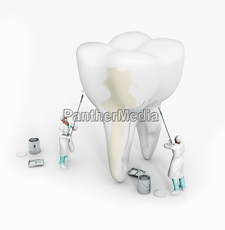 dentists whitening large tooth with white
