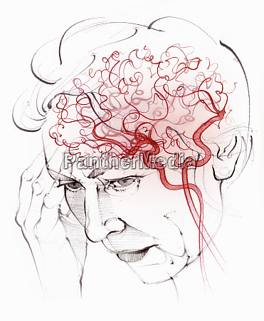 brain blood supply in elderly woman