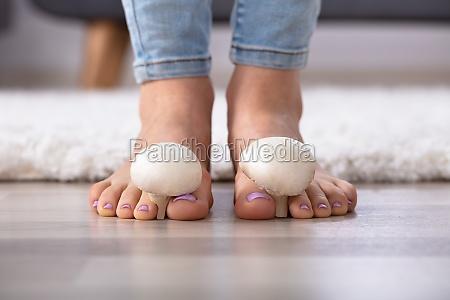mushrooms, between, woman's, toes - 26052559