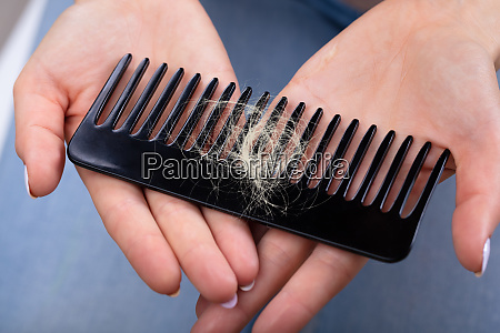 woman holding comb with hair loss