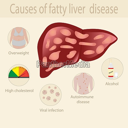 causes of fatty liver disease infographics
