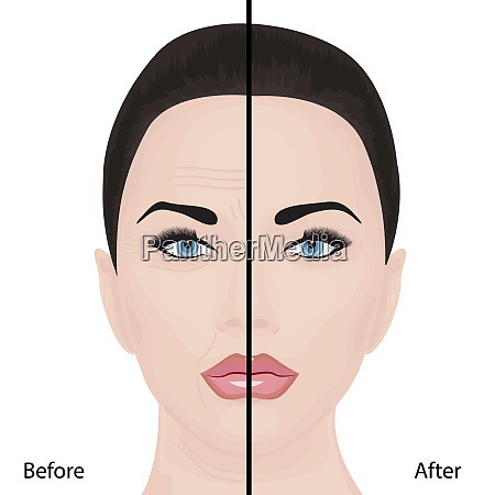 aging face lifting wrinkles treatment
