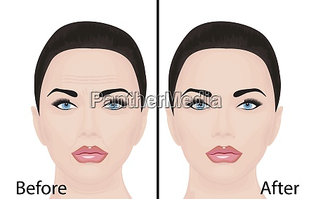 young and aging face wrinkles treatment