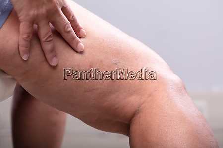 treatment of varicose before and after