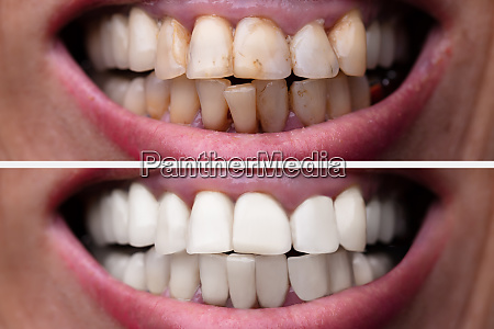 woman teeth before and after dental