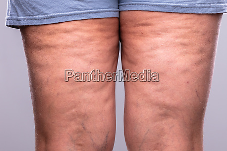 close up of a persons leg