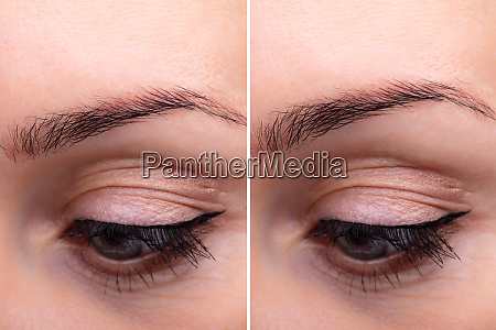 eyebrows before and after lifting