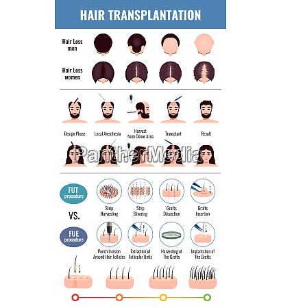 baldness of men and women methods