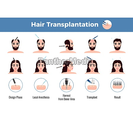 hair transplantation for men and women