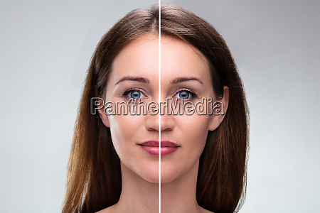 womans face before and after cosmetic