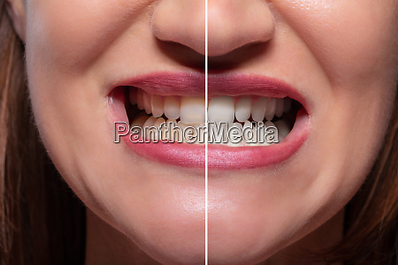person teeth before and after whitening