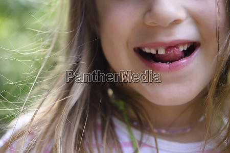 girl with missing tooth