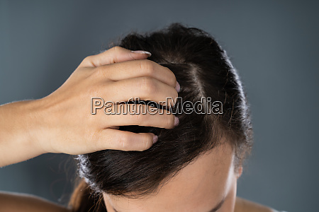 woman scratching her itchy head