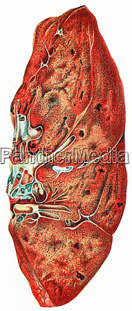 lung croupous pneumonia vintage engraving