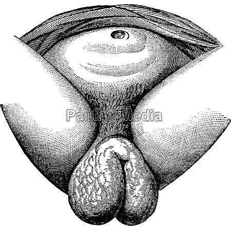 elephantiasis of the labia majora in
