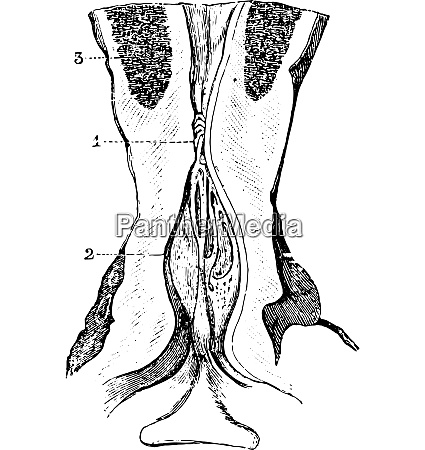 narrowing of the membranous area of