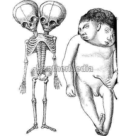 fig 174 skeleton of two headed