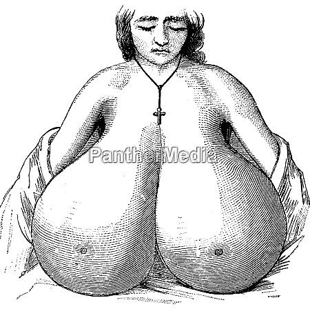 enlarged breasts vintage engraving