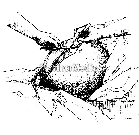 ovariectomy or oophorectomy vintage engraving