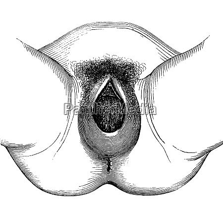 perineal distention and dilation of the
