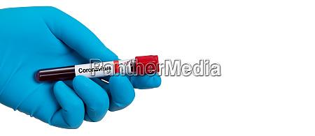 coronavirus 2019 ncov blood sample
