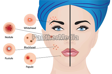 acne types on a woman face