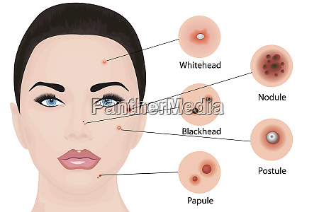acne types vector illustration cosmetology