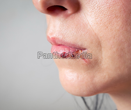 woman face with injury home violence