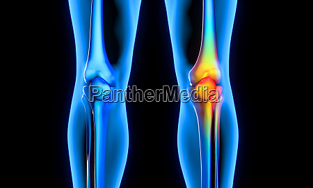 sore knee medicine and health concept