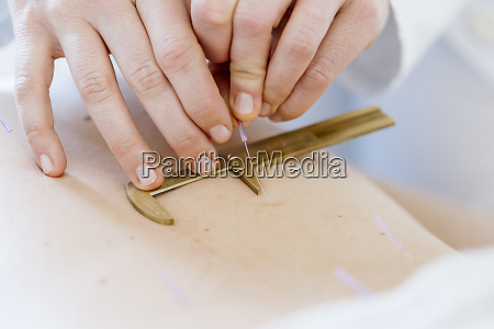 acupuncture hand with calliper on back