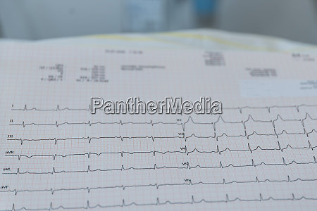 long term ekg for heart examination