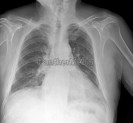 x ray image of lung with
