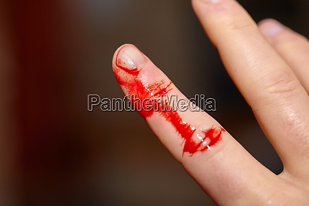 cut finger bleeding