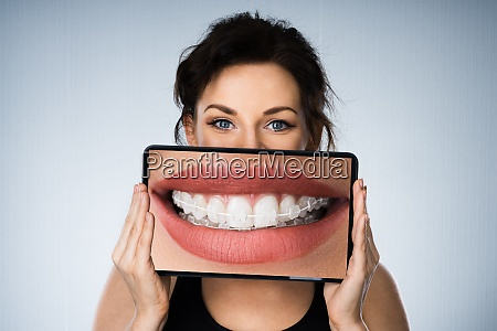 fund woman portrait with dental braces