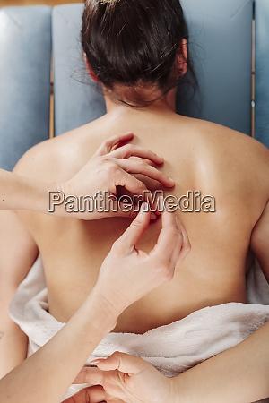 physiotherapist inserting needle on woman back