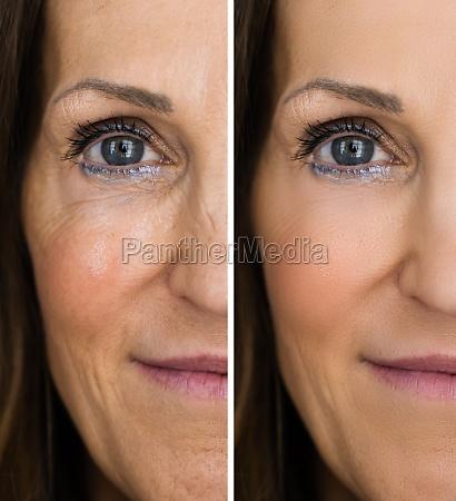 anti rejuvenation wrinkles lift before