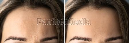 anti age rejuvenation forehead lift before
