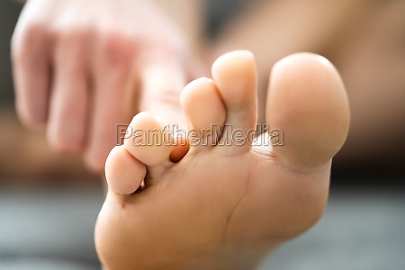 athlete foot fungal infection