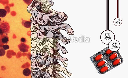 the human spine and a blister