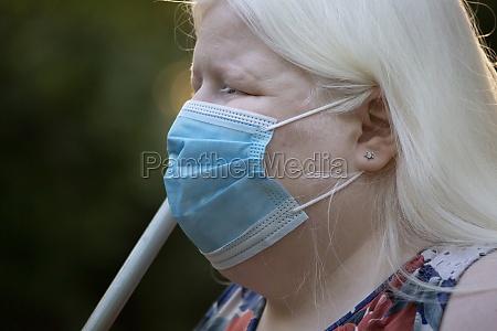 albino woman wearing a mask
