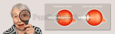 cataract concept senior womans eye closeup