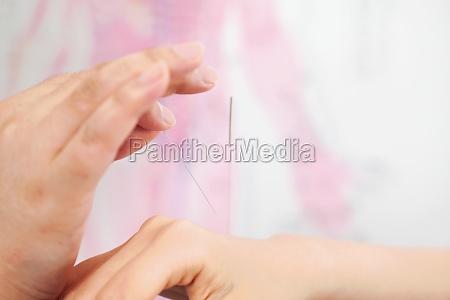 adult patient tcm acupuncture needle adults