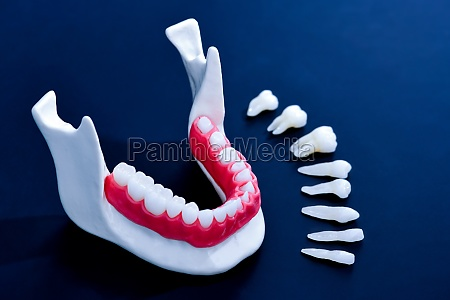 tooth implant and crown installation process