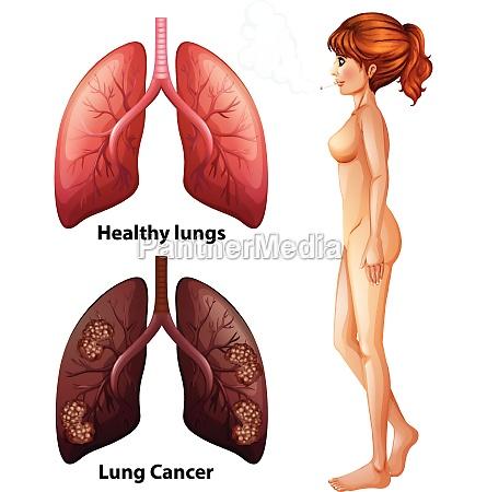 human anatomy lung of smoker