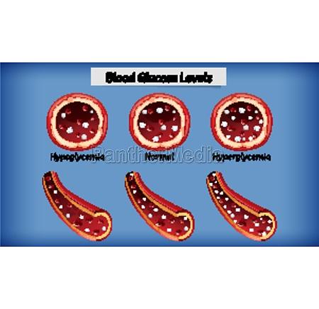 medical blood glucose level