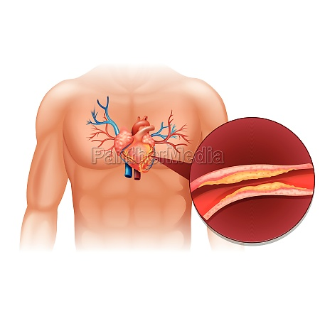 heart cholesteral in human body