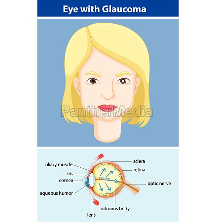 diagram showing eye with glaucoma